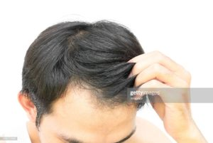 Prayers For Hair Loss